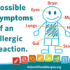 allergic-reaction-symptoms