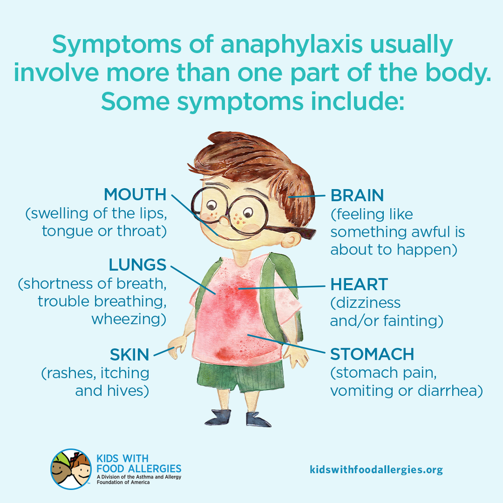 Food Allergy Education: Symptoms of Anaphylaxis