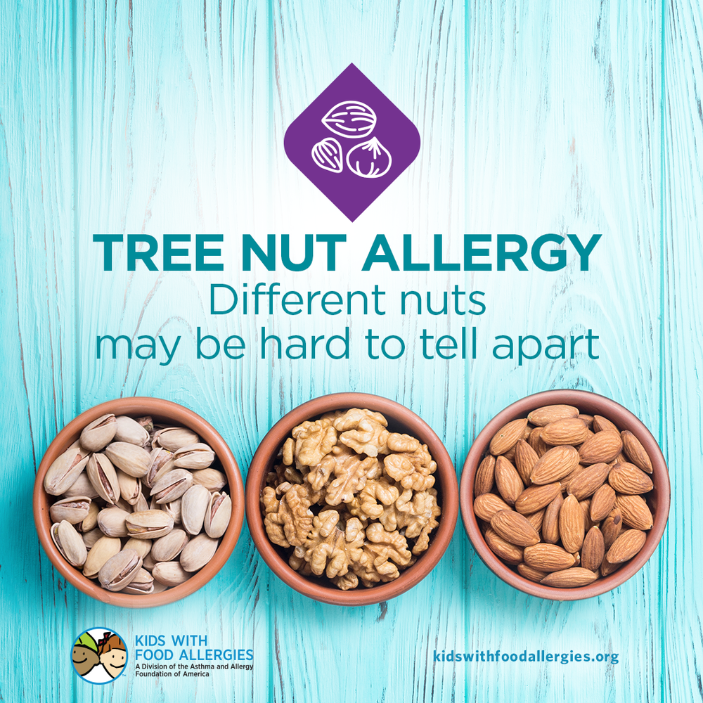 Food Allergy Education: It Can Be Hard to Tell Different Nuts Apart